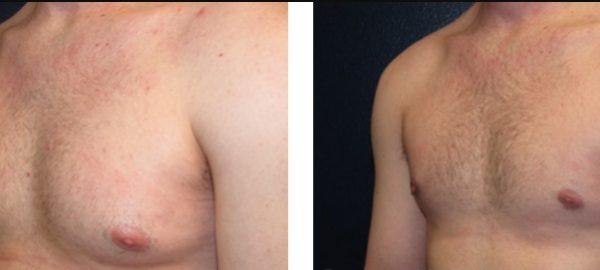 การดูดไขมันที่ใช้สำหรับการผ่าตัดลดขนาดหน้าอก