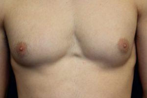 การกำจัดเนื้อเยื่อเต้านมจำนวนเล็กน้อยในการรักษาโรคนรีเวชสามารถให้ผลลัพธ์ที่ดี