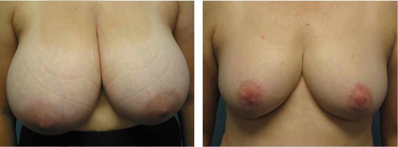 การผ่าตัดเต้านมสามารถฟื้นฟูความสมมาตรของเต้านมได้
