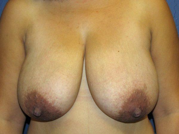 รายละเอียดความงามควรได้รับการแก้ไขในการผ่าตัดลดขนาดหน้าอก