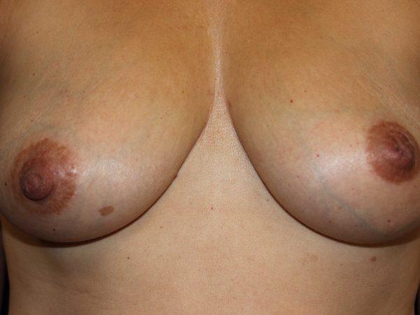 การรักษาหัวนมซ้ายคว่ำในหญิงวัยกลางคน