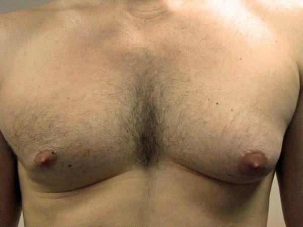 การรักษา GYNECOMASTIA ข้างเดียวด้วยการดูดไขมันและการตัดเนื้อเยื่อเต้านม
