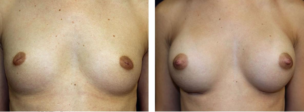 เหนือกล้ามเนื้อ VS ใต้กล้ามเนื้อในการผ่าตัดเสริมหน้าอก