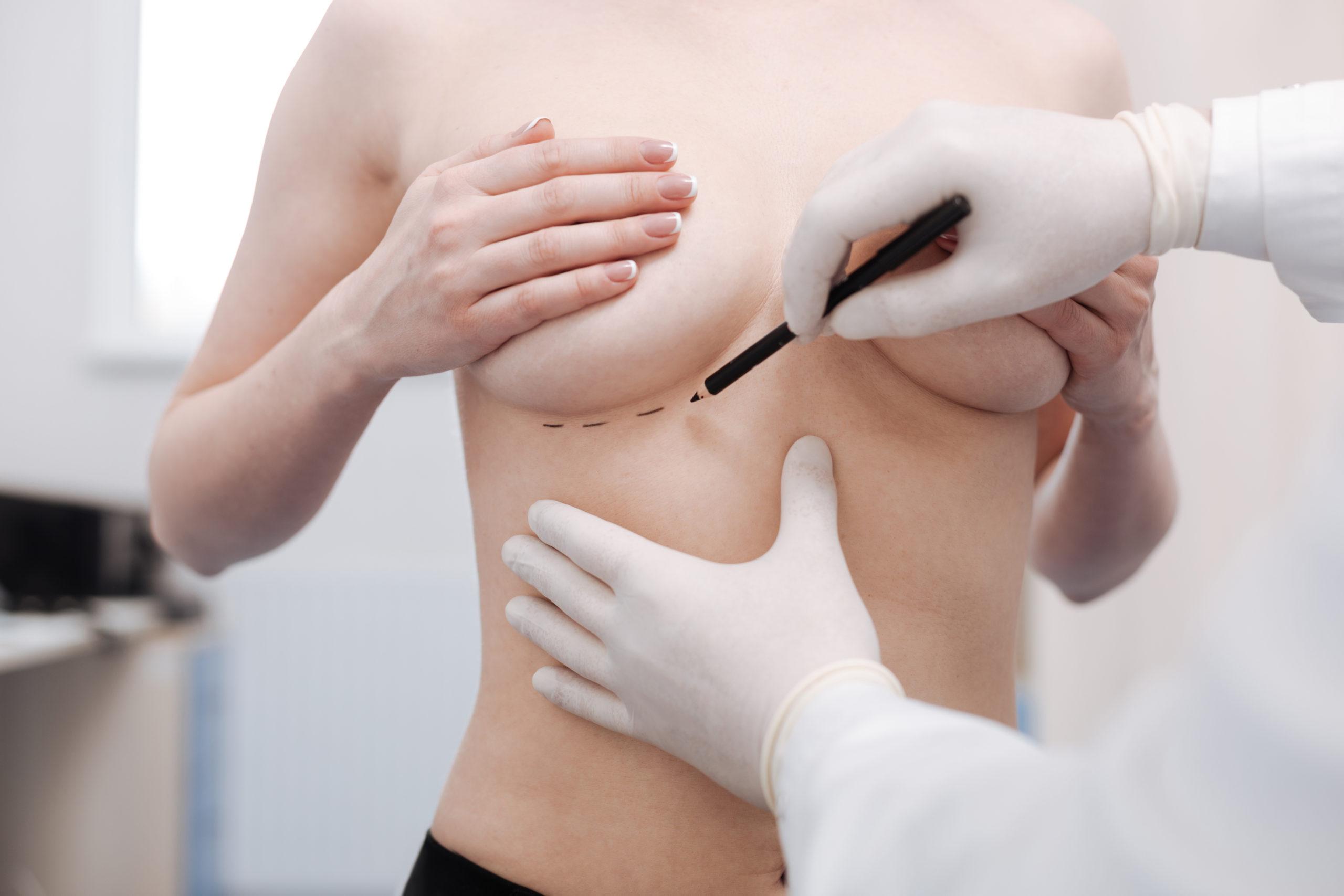 ปัจจัย 3 อันดับแรกที่นำไปสู่ผู้หญิงที่ต้องการศัลยกรรมยกกระชับหน้าอก